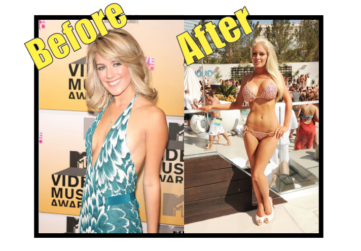 Heidi Montag before vs after